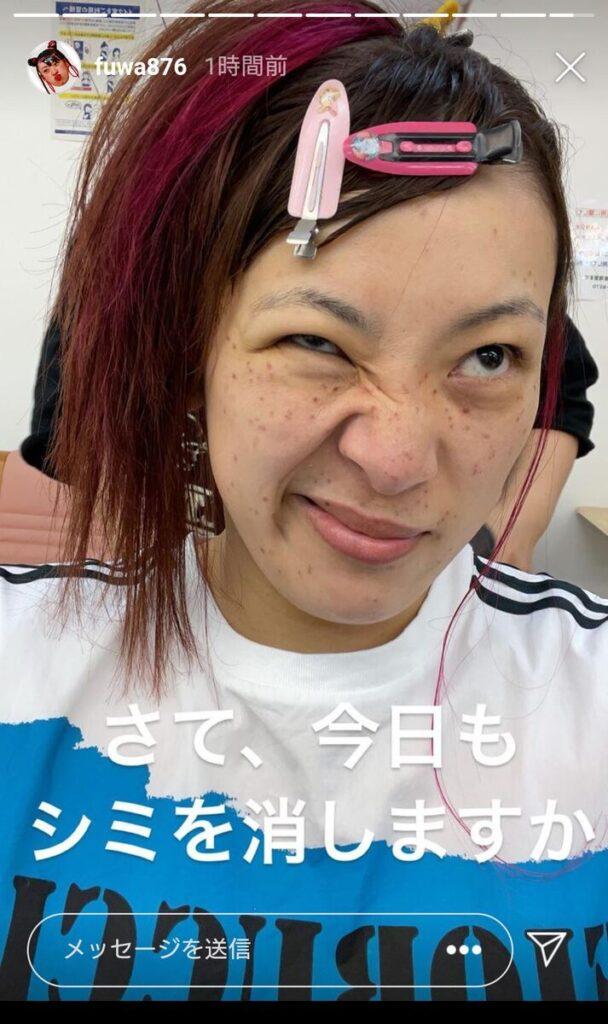 トーク下手な女性芸能人ランキングフワちゃん
